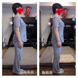 産後のポッコリお腹改善集中プログラムタイトル
